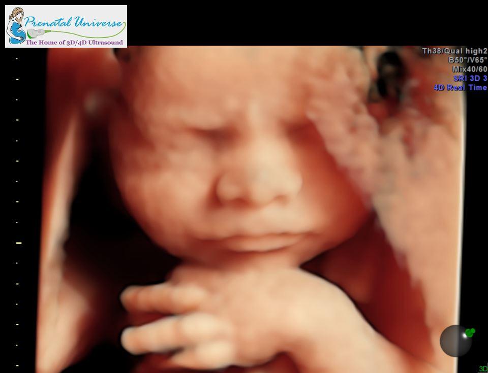 4d Hd Ultrasound Image Gallery Prenatal Universe Ultrasound