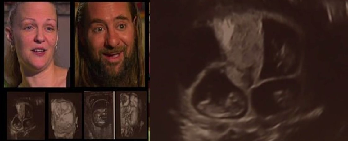 "Mom Is In For a Routine Ultrasound, But Doctor Says ""Oh My Gosh"" After Seeing 3 Babies"
